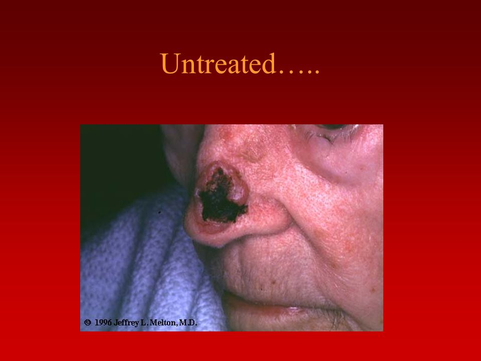 Untreated…..