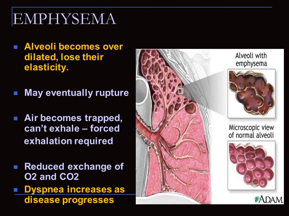 EMPHYSEMA Alveoli becomes over dilated, lose their elasticity.