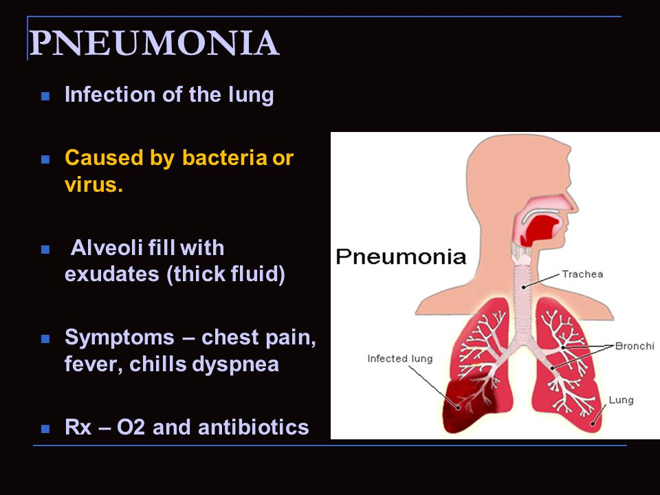PNEUMONIA Infection of the lung Caused by bacteria or virus.