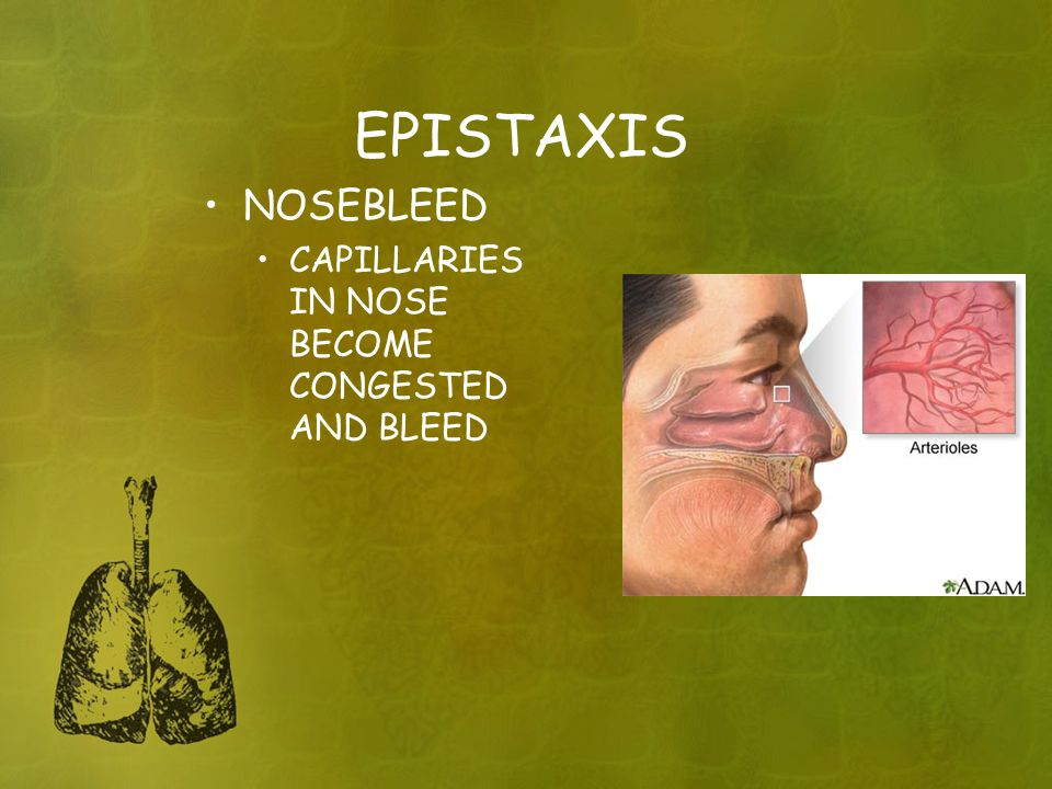 EPISTAXIS NOSEBLEED CAPILLARIES IN NOSE BECOME CONGESTED AND BLEED