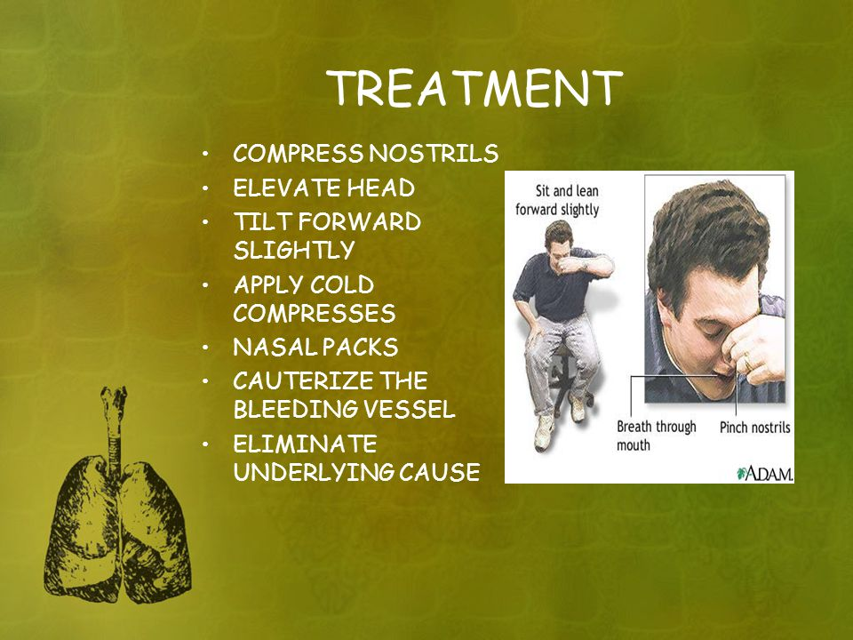 TREATMENT COMPRESS NOSTRILS ELEVATE HEAD TILT FORWARD SLIGHTLY