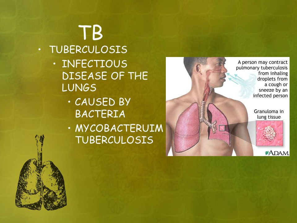 TB TUBERCULOSIS INFECTIOUS DISEASE OF THE LUNGS CAUSED BY BACTERIA