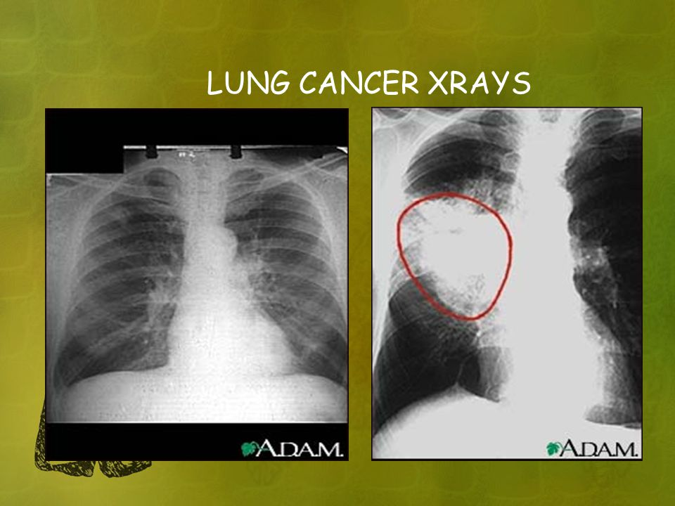 LUNG CANCER XRAYS ON LEFT