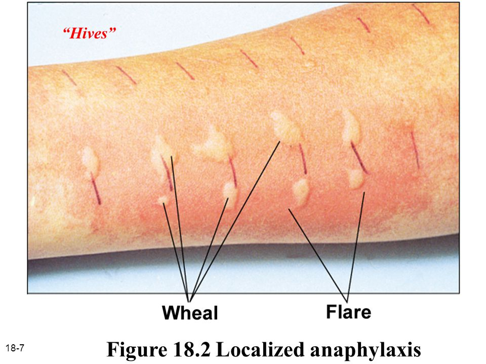 Figure 18.2 Localized anaphylaxis