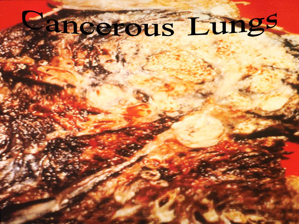 Cancerous Lungs