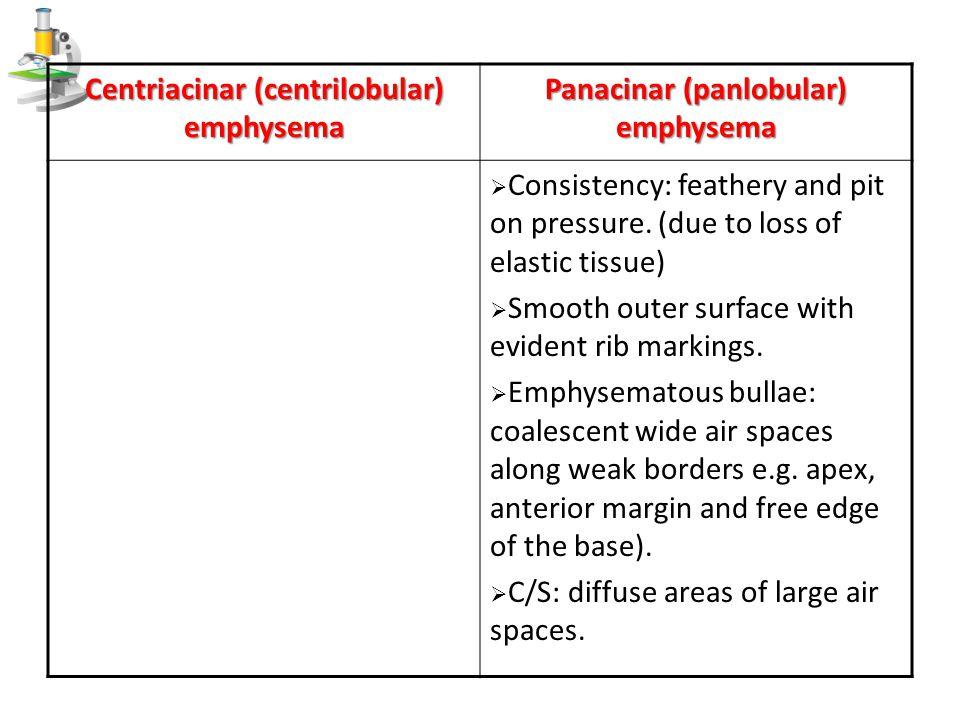 Panacinar (panlobular) emphysema