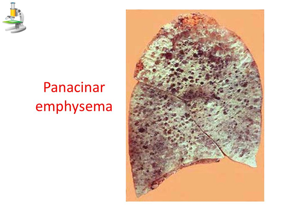 Panacinar emphysema