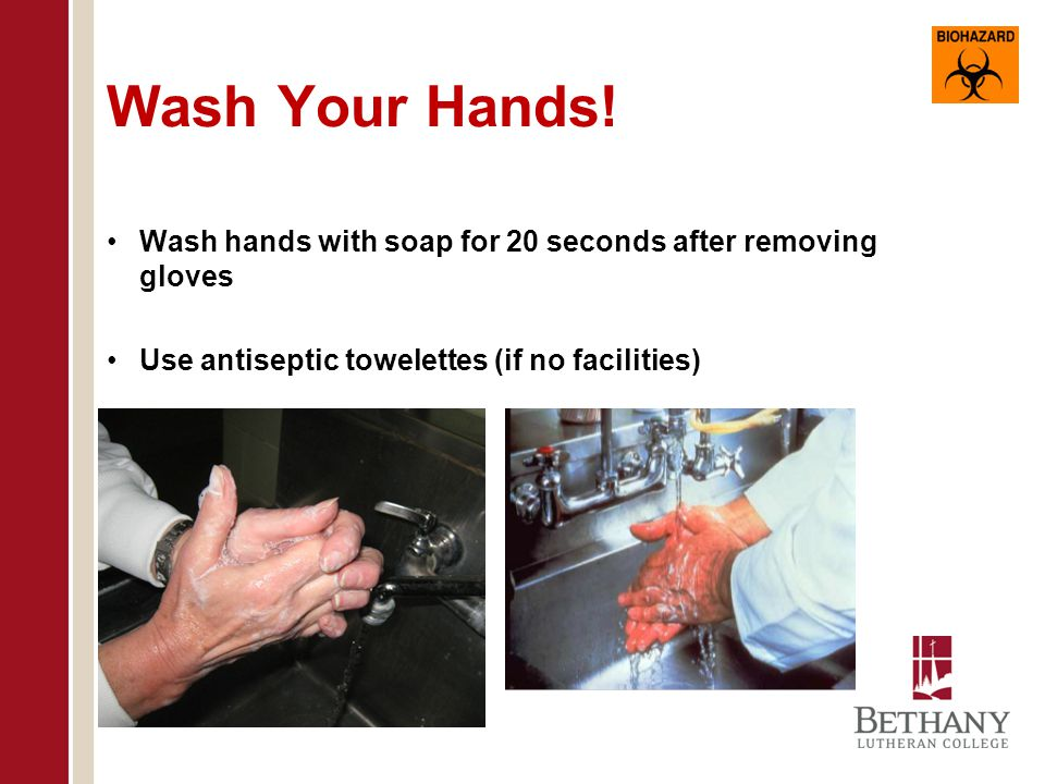 Wash Your Hands. Wash hands with soap for 20 seconds after removing gloves.
