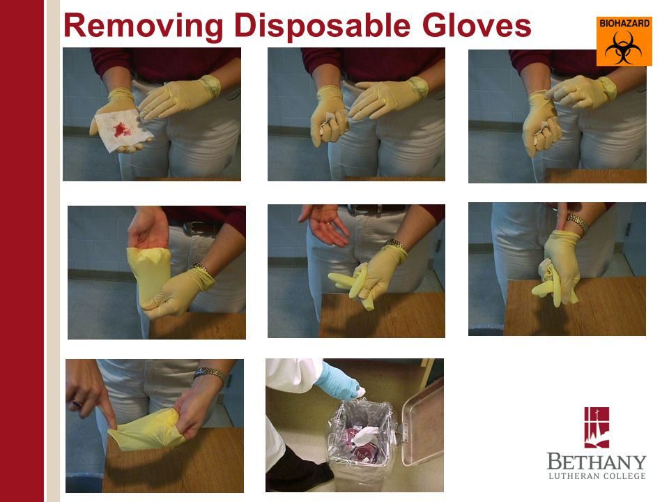 Removing Disposable Gloves