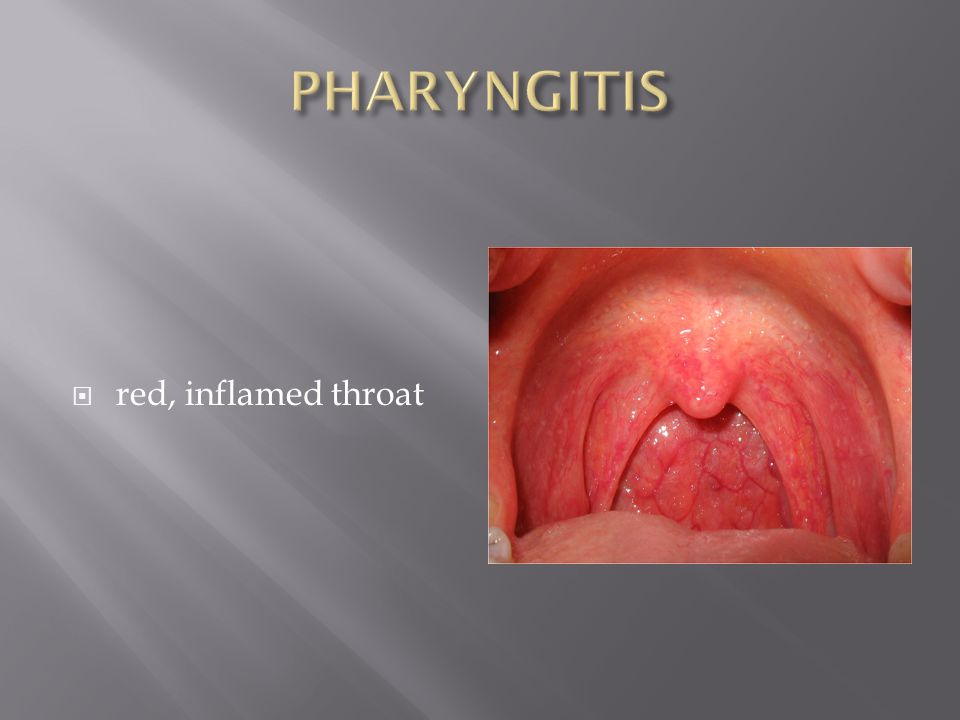 PHARYNGITIS red, inflamed throat