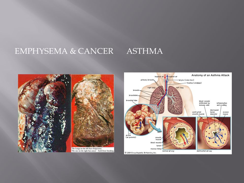 Emphysema & Cancer Asthma