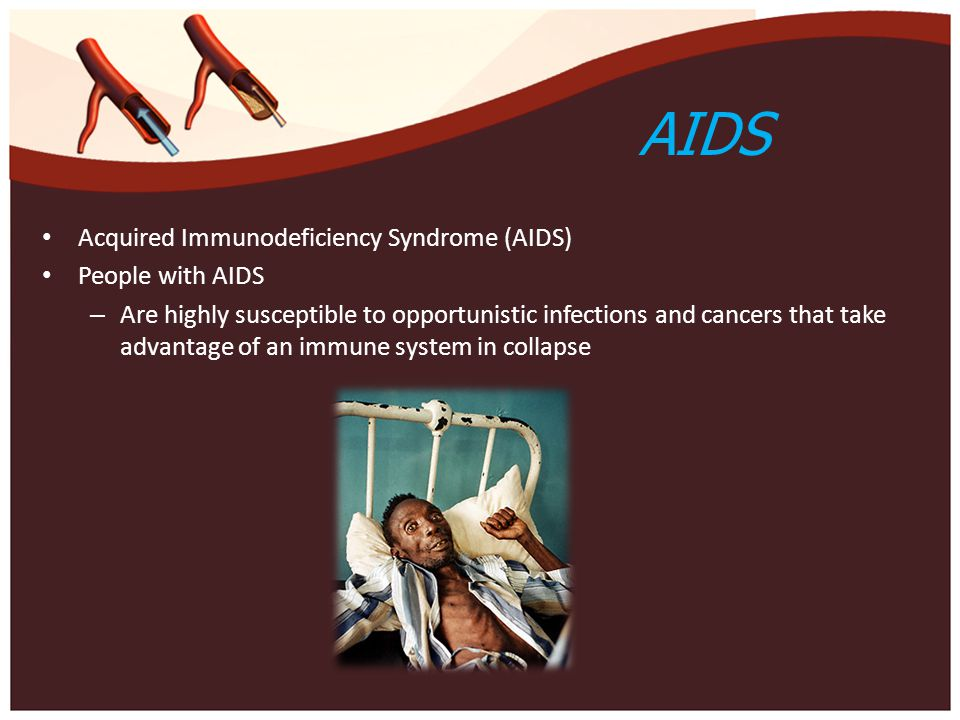 AIDS Acquired Immunodeficiency Syndrome (AIDS) People with AIDS