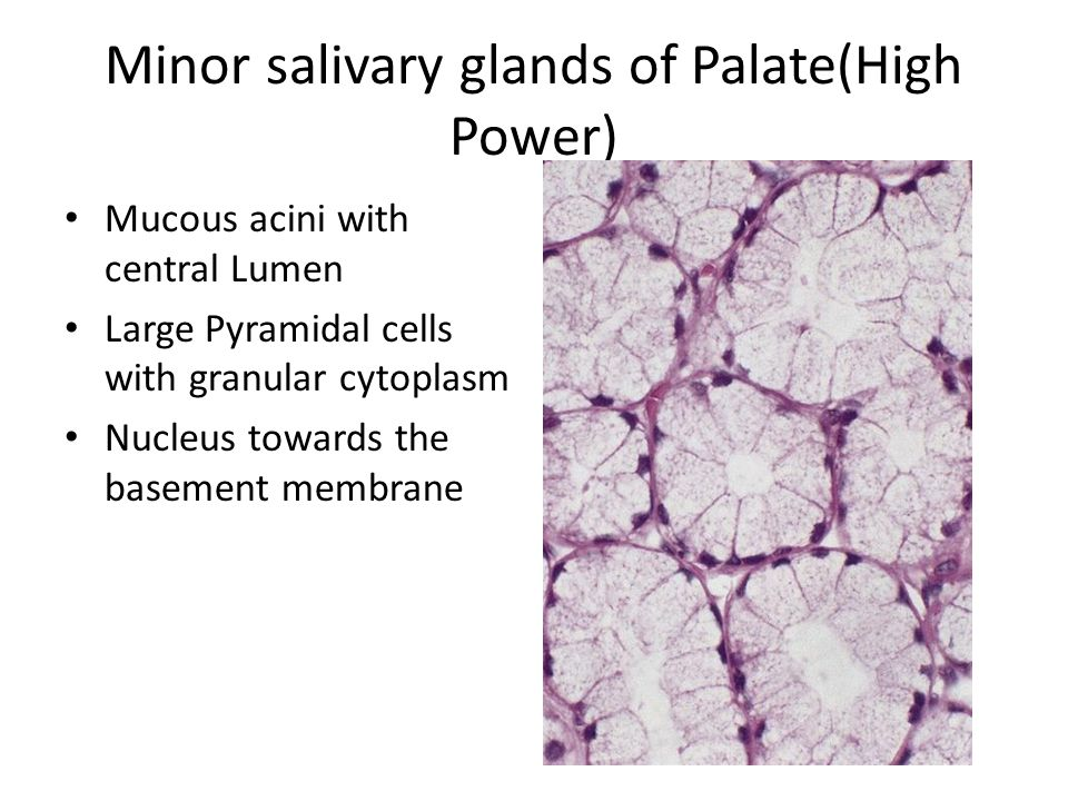 Minor salivary glands of Palate(High Power)