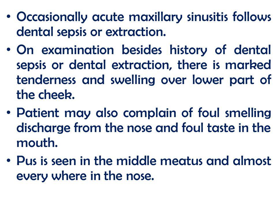 Occasionally acute maxillary sinusitis follows dental sepsis or extraction.