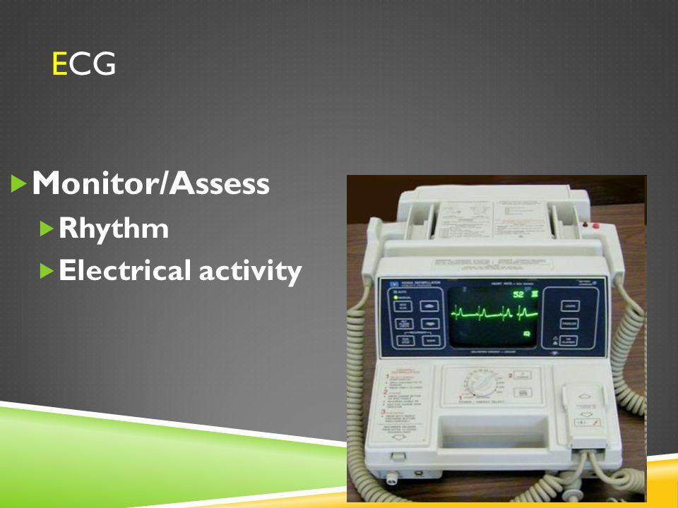 ECG Monitor/Assess Rhythm Electrical activity