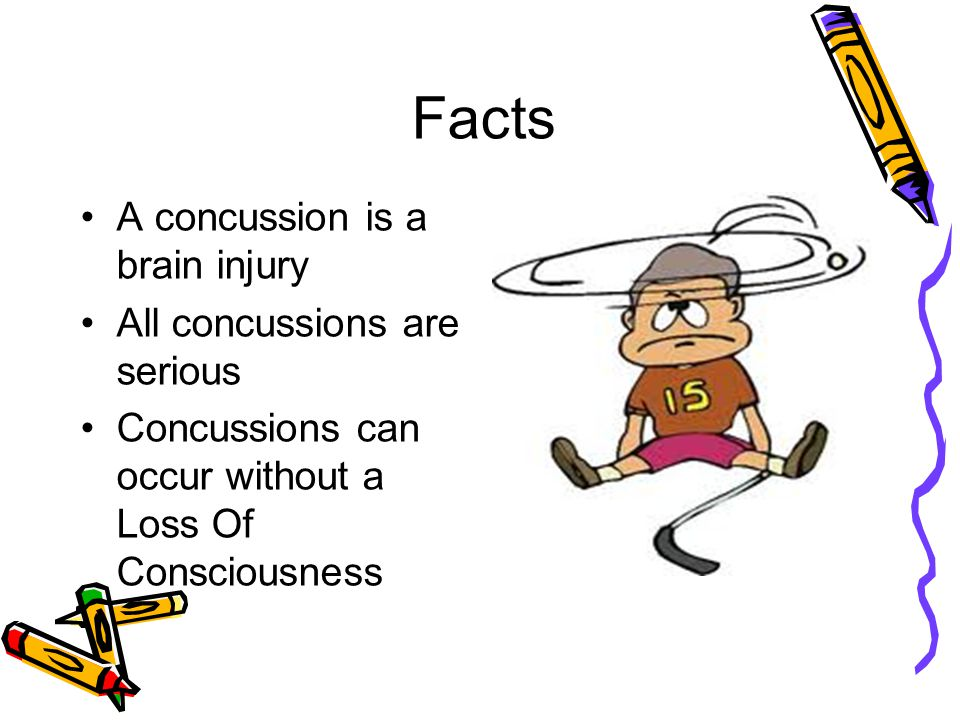 Facts A concussion is a brain injury All concussions are serious