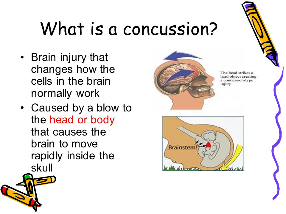 What is a concussion Brain injury that changes how the cells in the brain normally work.