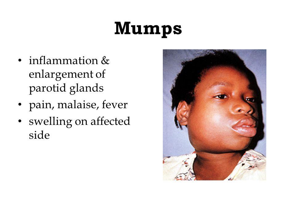Mumps inflammation & enlargement of parotid glands