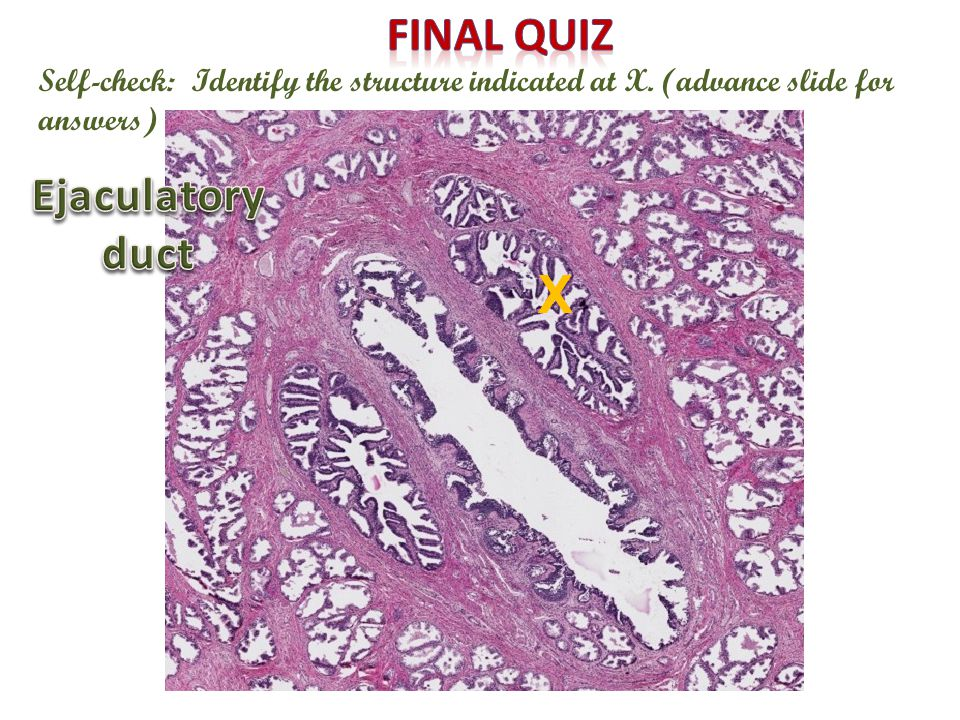 X Final quiz Ejaculatory duct