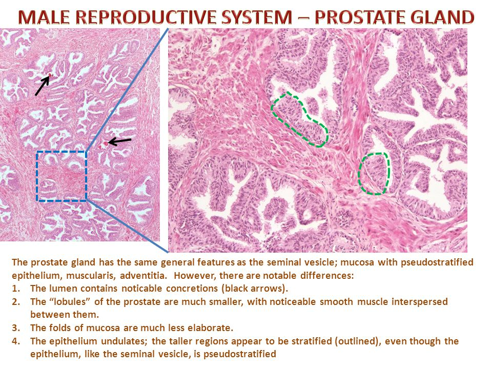 MALE REPRODUCTIVE SYSTEM – PROSTATE GLAND