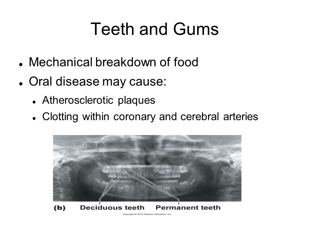 Teeth and Gums Mechanical breakdown of food Oral disease may cause: