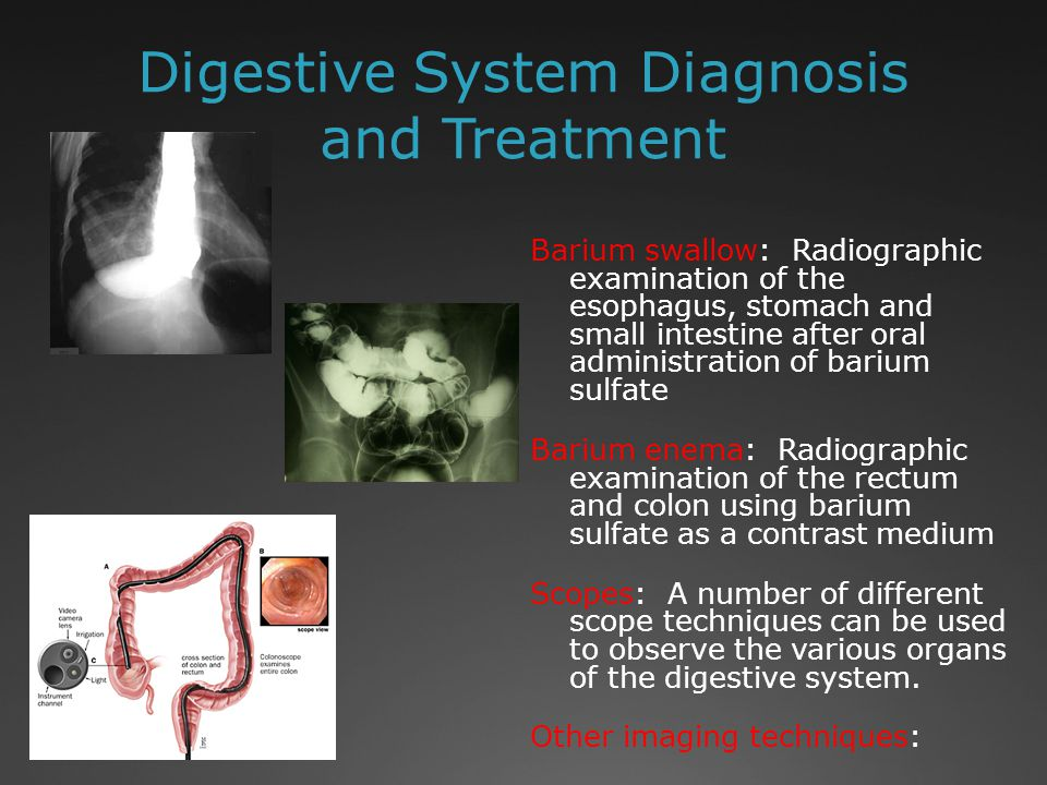 Digestive System Diagnosis and Treatment