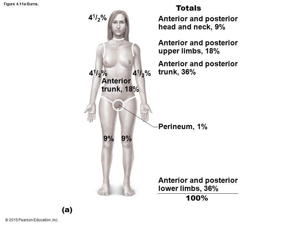 Anterior and posterior head and neck, 9%