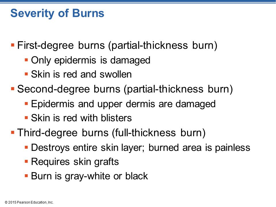 Severity of Burns First-degree burns (partial-thickness burn)