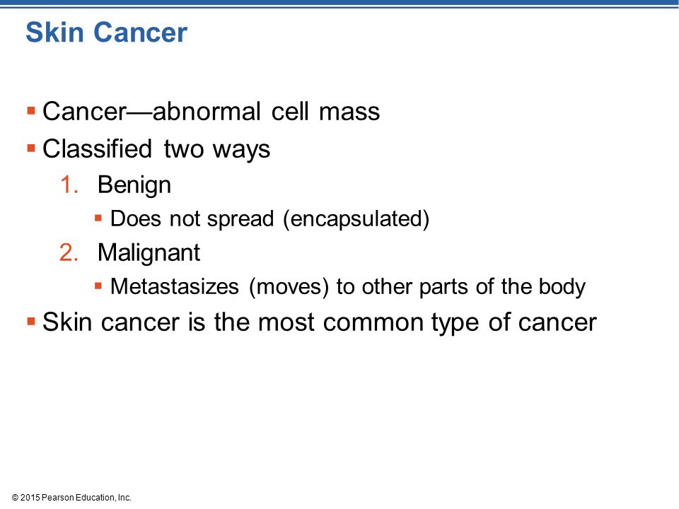 Skin Cancer Cancer—abnormal cell mass Classified two ways