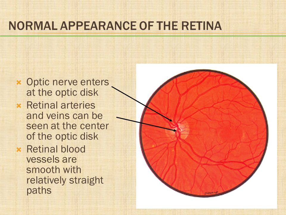 Normal Appearance of the Retina