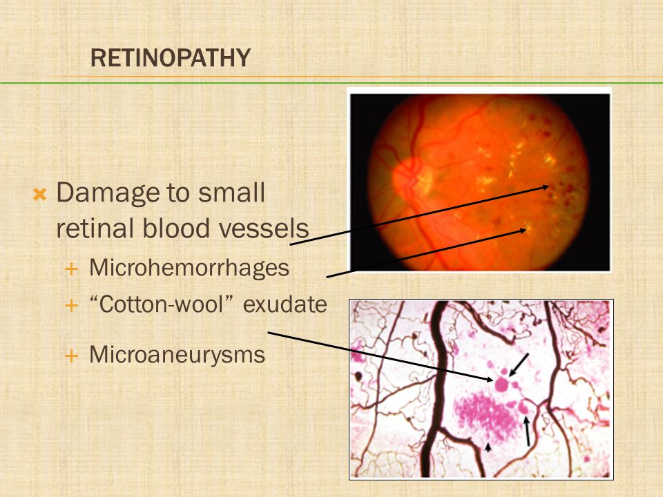 Damage to small retinal blood vessels