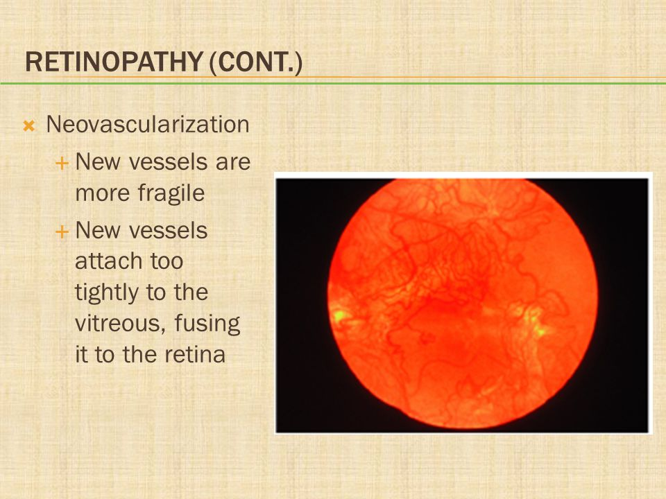 Retinopathy (cont.) Neovascularization New vessels are more fragile