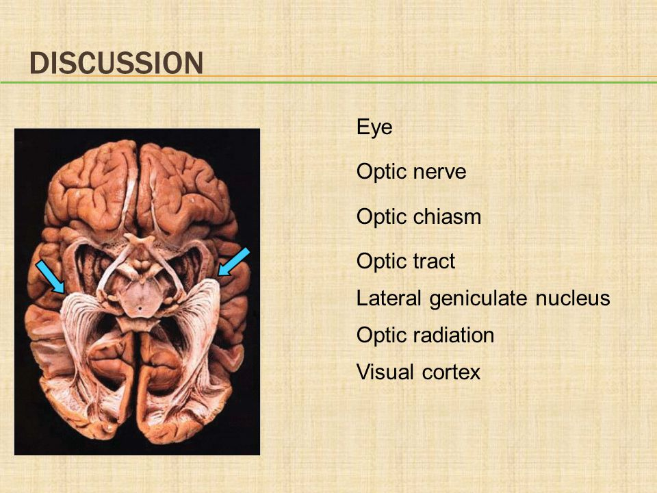 Discussion Eye Optic nerve Optic chiasm Optic tract