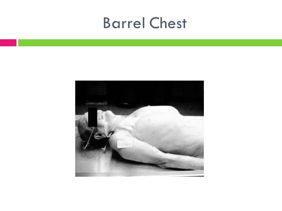 Barrel Chest