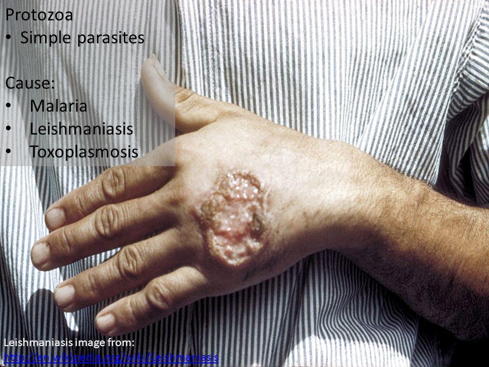 Protozoa Simple parasites Cause: Malaria Leishmaniasis Toxoplasmosis