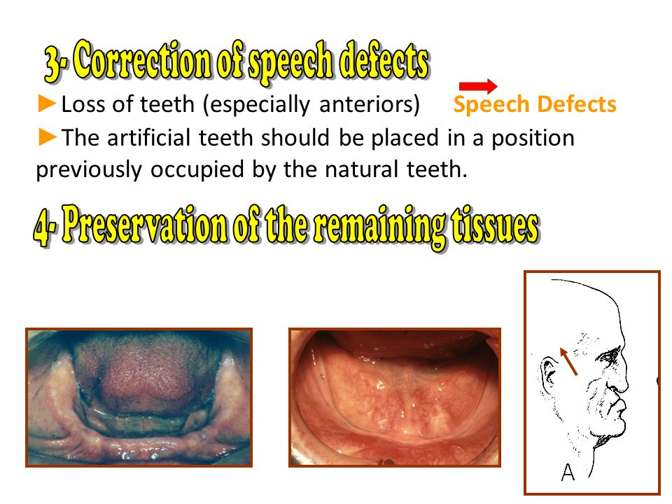 3- Correction of speech defects