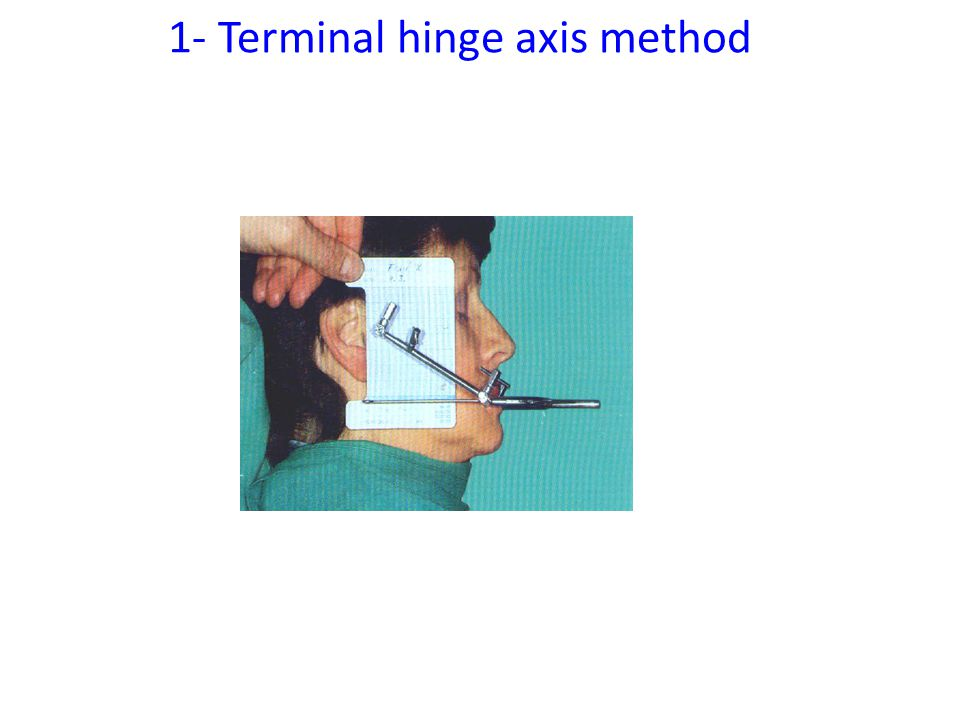 1- Terminal hinge axis method