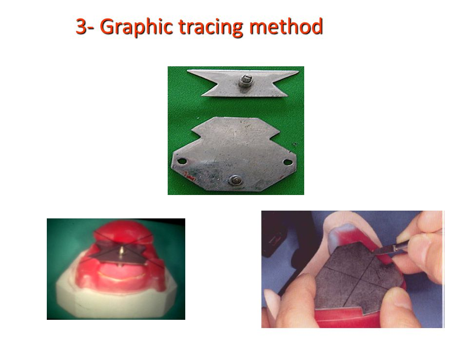 3- Graphic tracing method