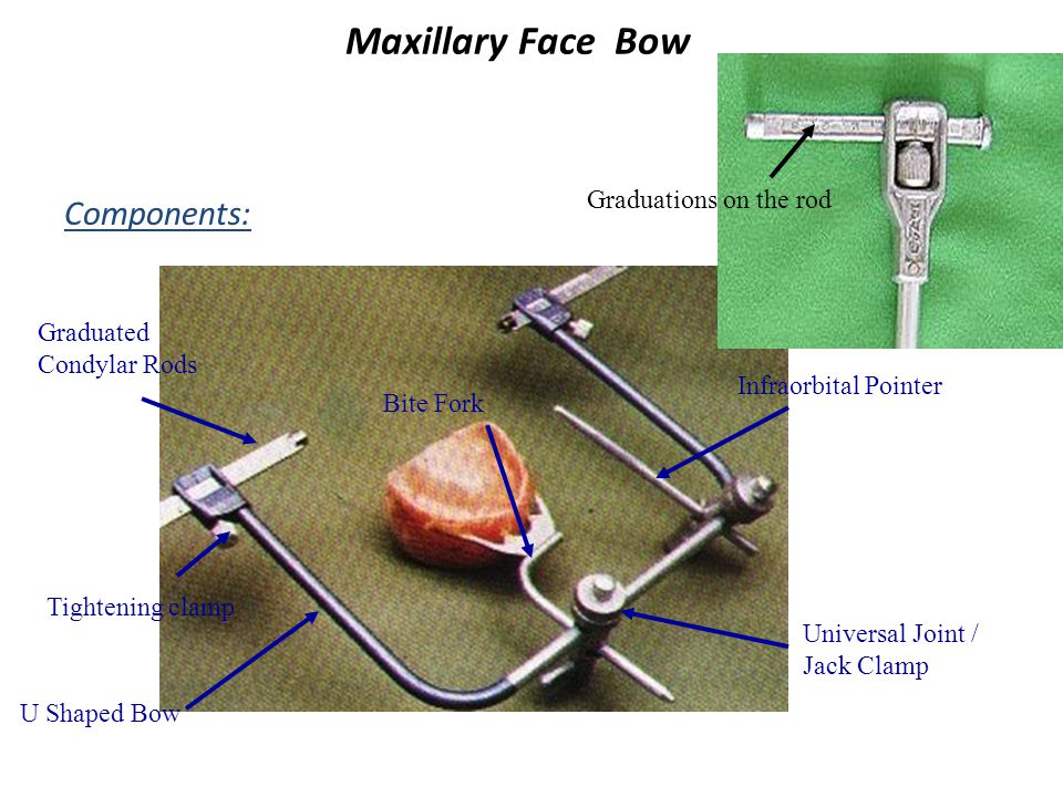 Maxillary Face Bow Components: Graduations on the rod Graduated