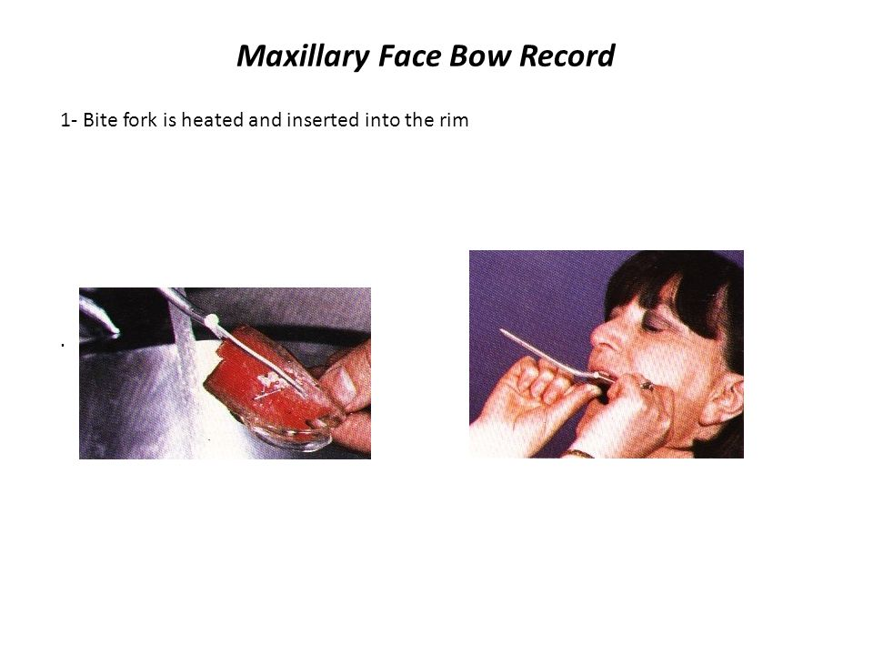 Maxillary Face Bow Record