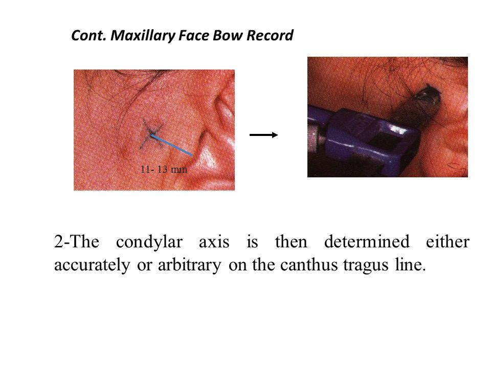 Cont. Maxillary Face Bow Record