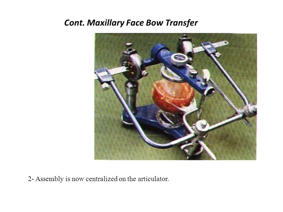 Cont. Maxillary Face Bow Transfer
