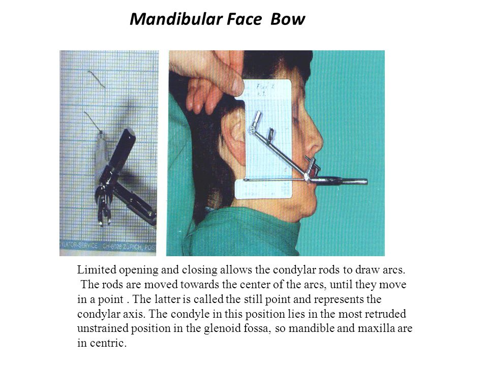 Mandibular Face Bow Limited opening and closing allows the condylar rods to draw arcs.