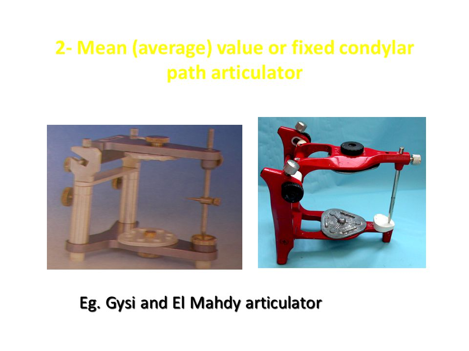 2- Mean (average) value or fixed condylar path articulator