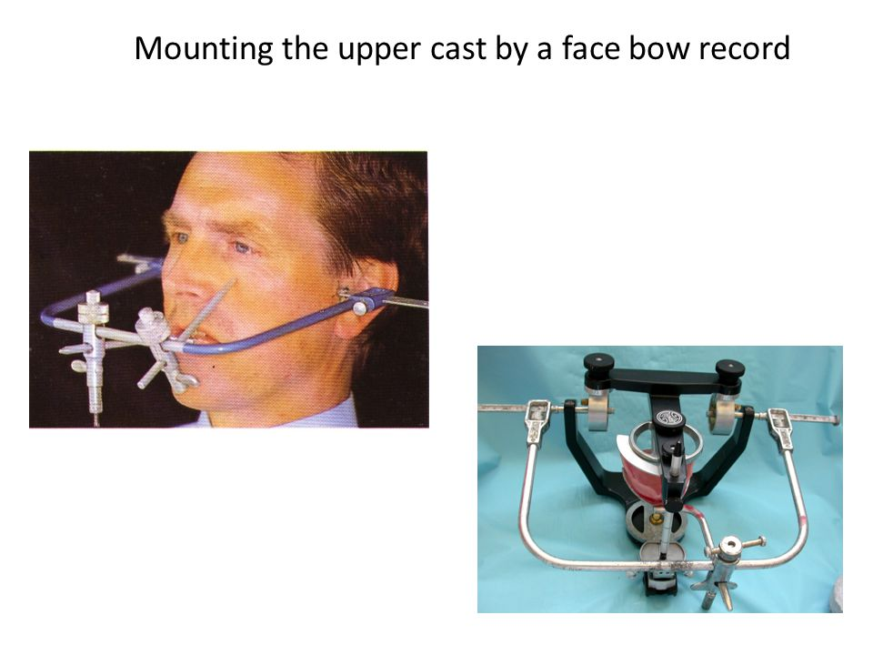 Mounting the upper cast by a face bow record