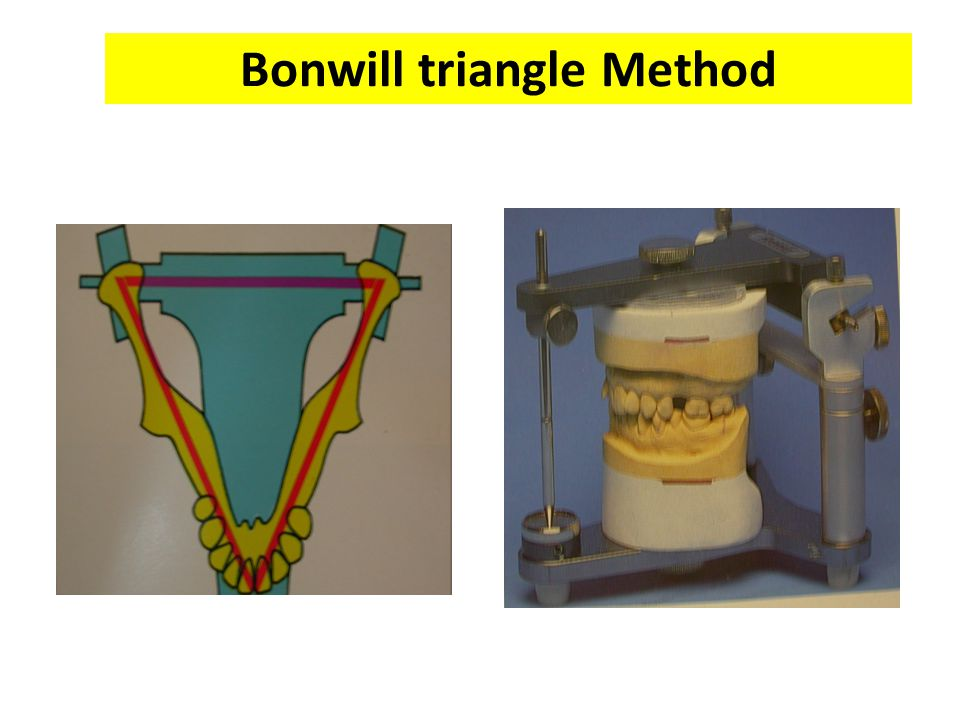 Bonwill triangle Method