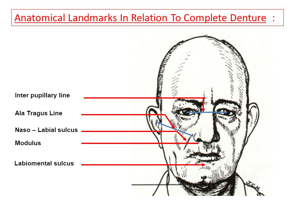Anatomical Landmarks In Relation To Complete Denture :