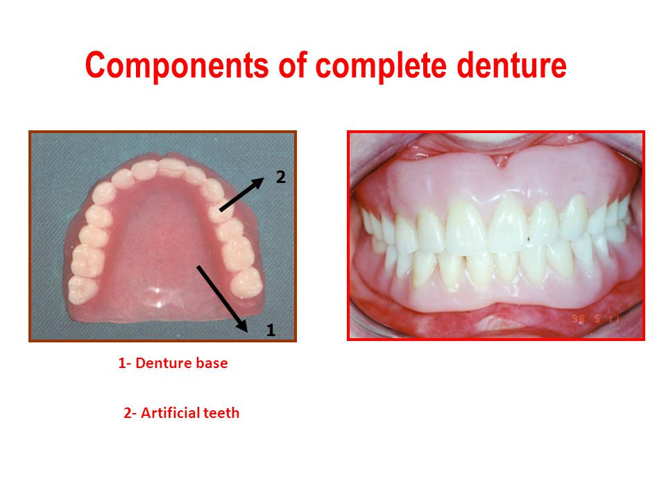 Components of complete denture