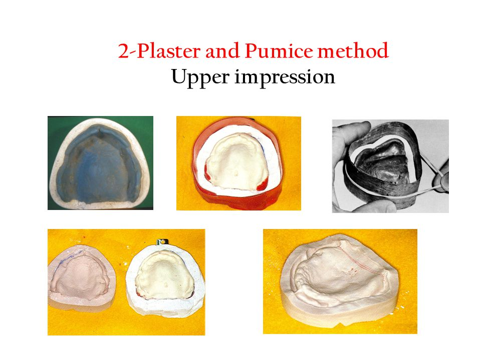 2-Plaster and Pumice method Upper impression