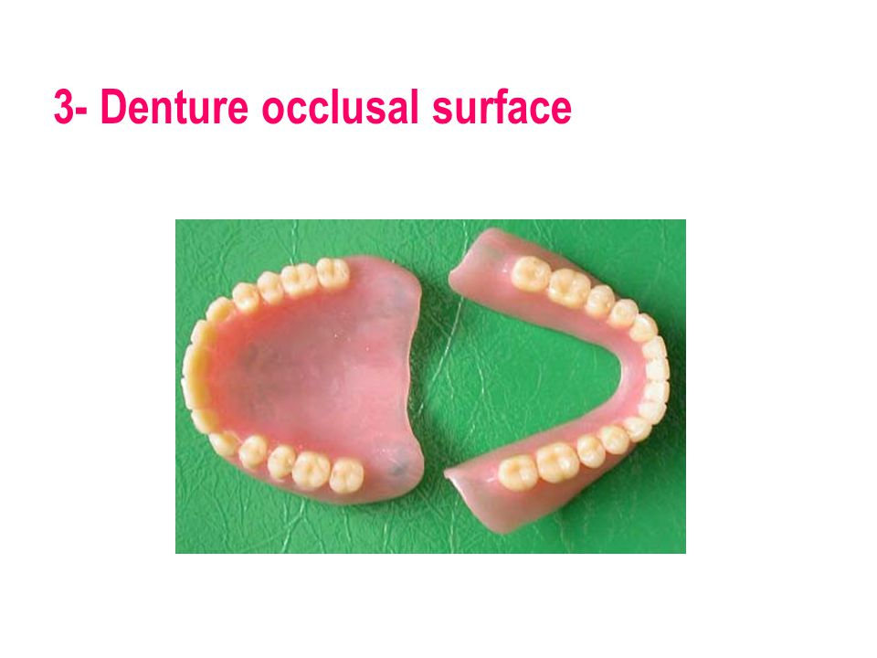 3- Denture occlusal surface